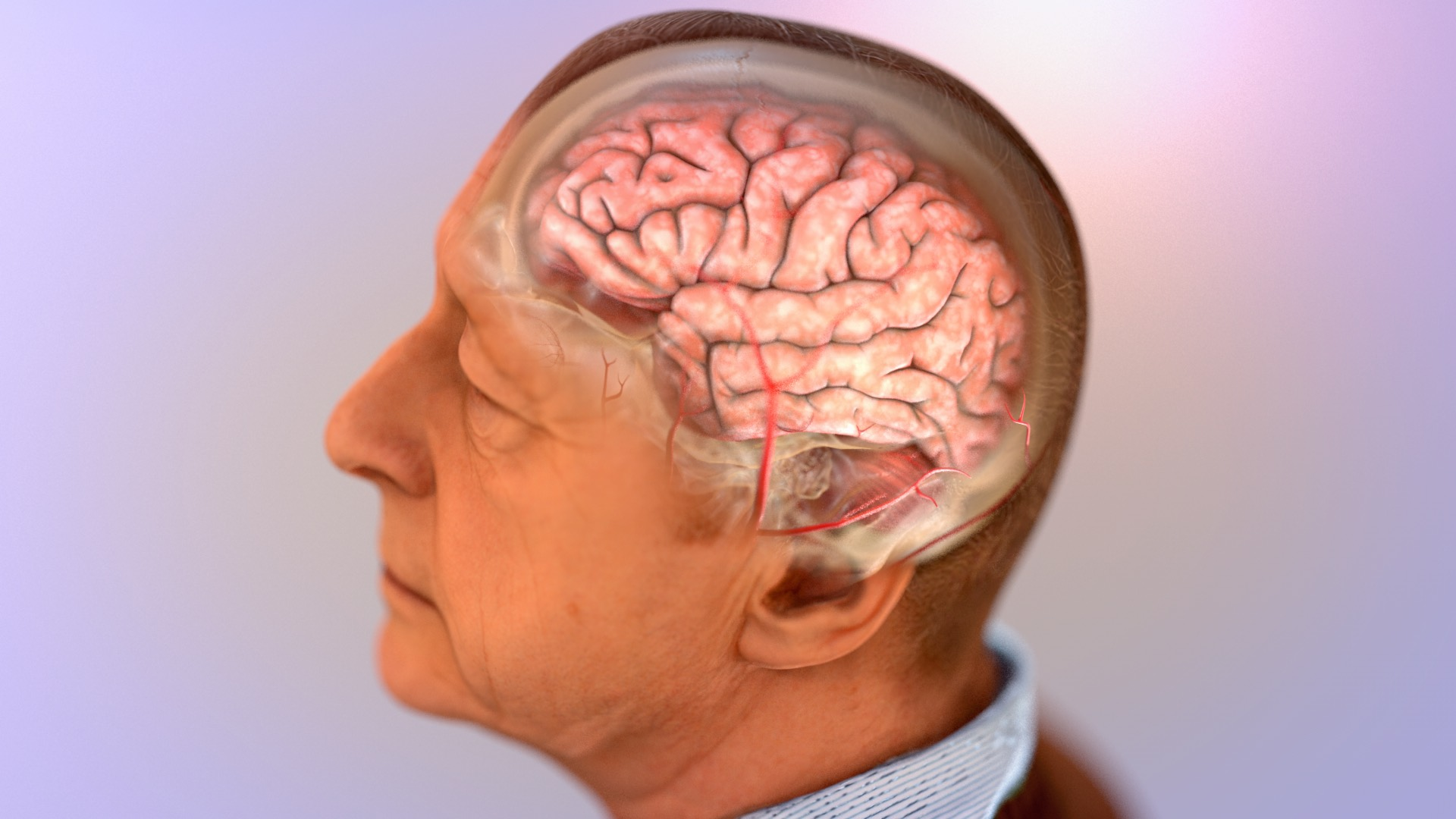 Image showing brain shrinkage caused by Alzheimer's.