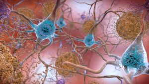 An image of plaque in the brain